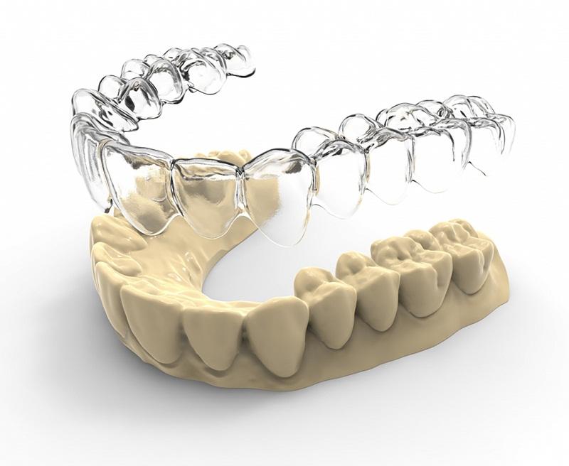 Niềng răng ecligner là phương pháp niềng răng không sử dụng mắc cài