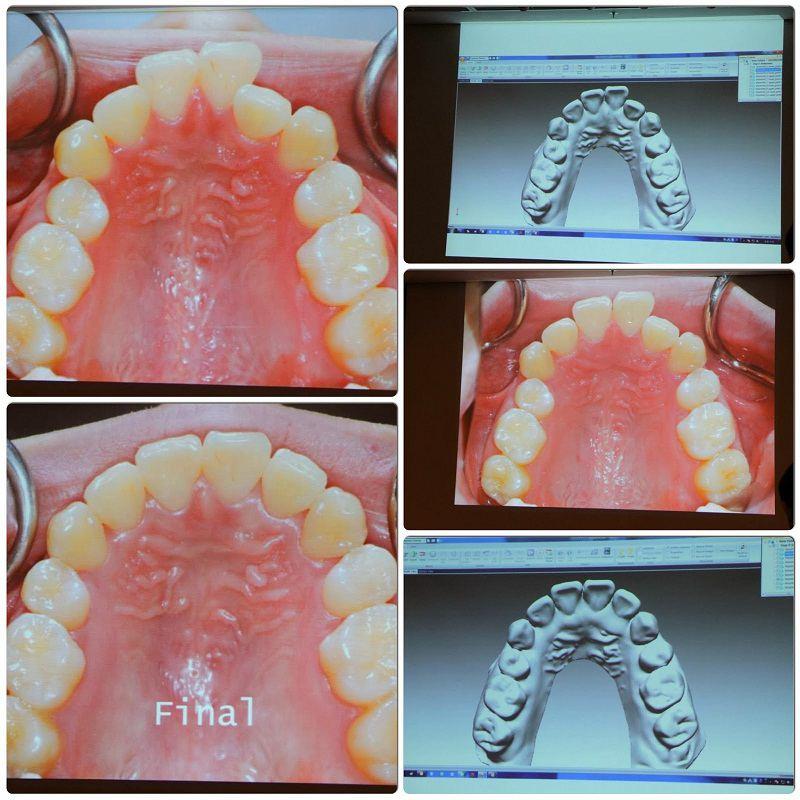 Quy trình niềng răng ecligner trải qua nhiều bước quan trọng