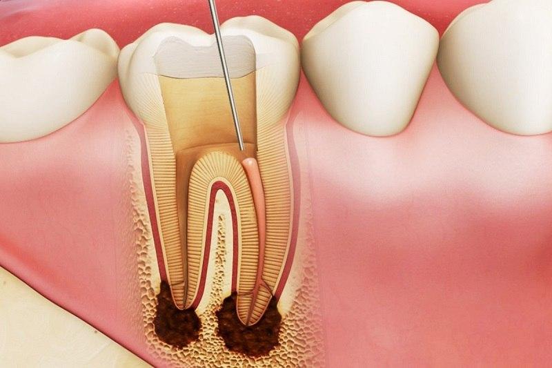 Điều trị tủy răng là một trong những cách chữa áp xe hiệu quả