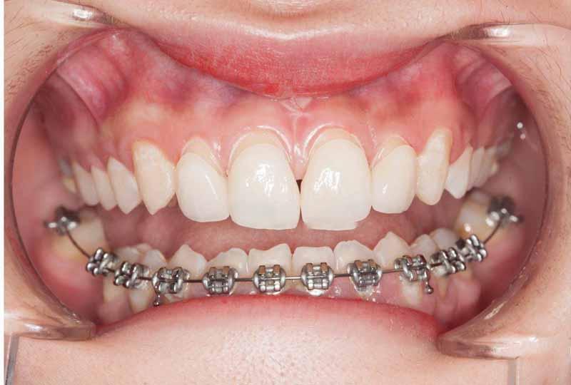 Niềng răng 1 hàm bằng mắc cài kim loại