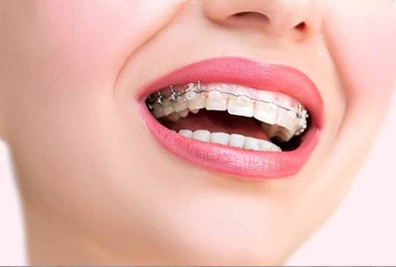 Có nên niềng răng 1 hàm không?