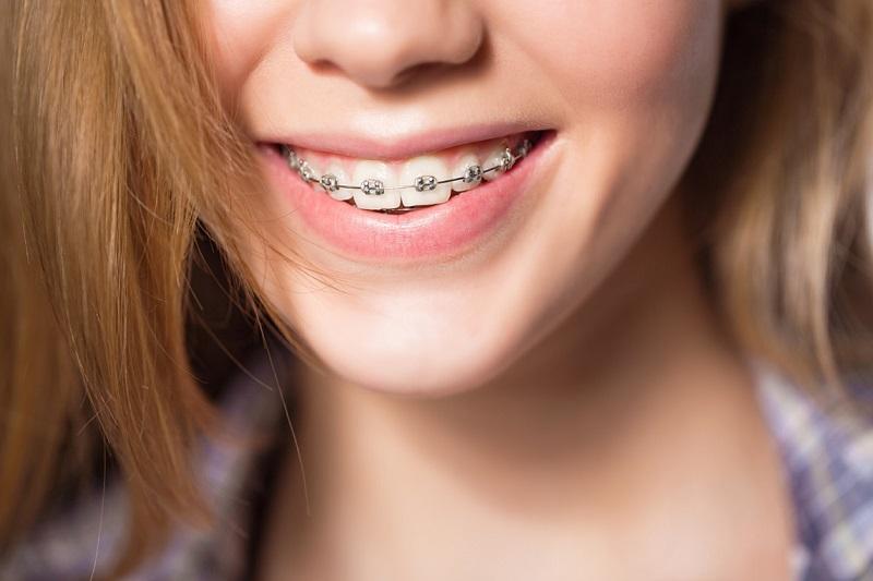 Dây cung niềng răng là một loại khí cụ quan trọng trong phương pháp niềng răng có mắc cài