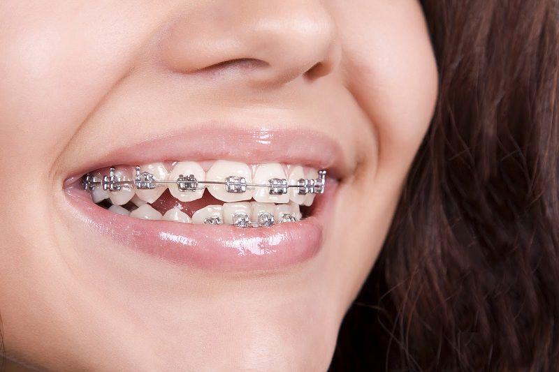 Trong quá trình niềng răng tồn tại khá nhiều vấn đề mà bạn có thể chưa hiểu được hết