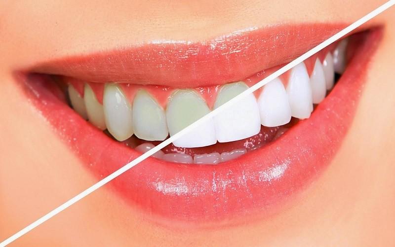 Tẩy trắng răng có thể gây ra tác dụng phụ là khiến răng trở nên nhạy cảm hơn