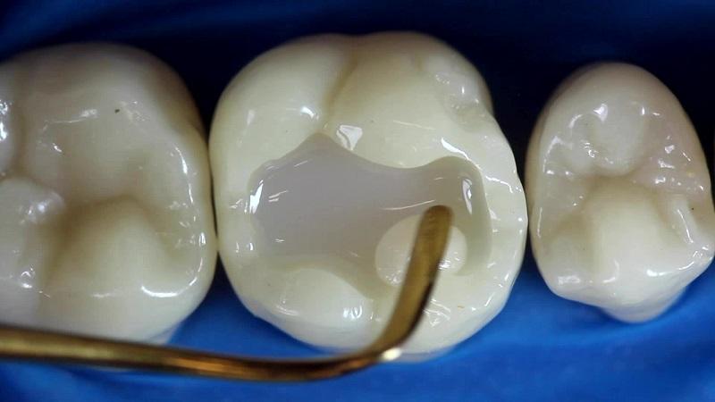 Trám răng là phương pháp cải thiện bệnh hiệu quả
