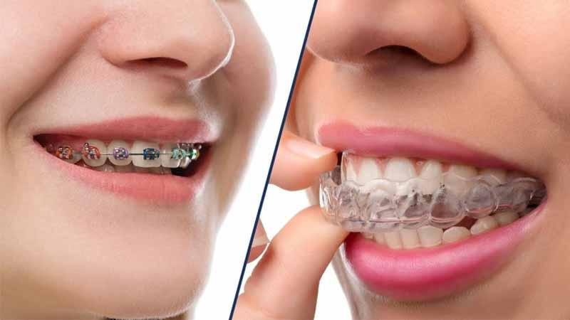 Phương pháp niềng răng là yếu tố hàng đầu ảnh hưởng đến giá niềng răng