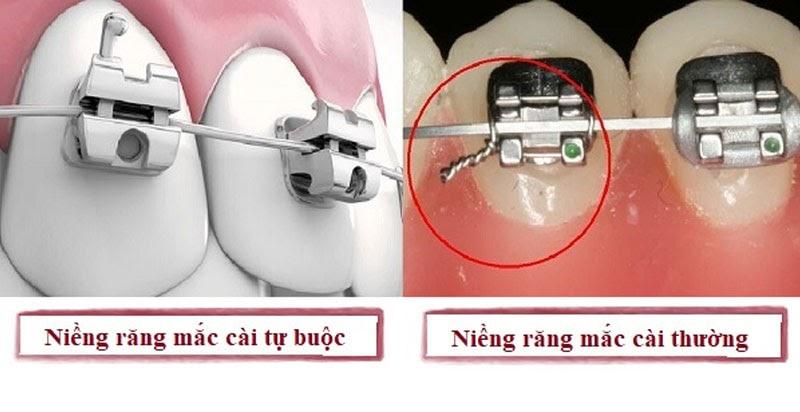 HÌnh ảnh cận hai hình thức niềng răng