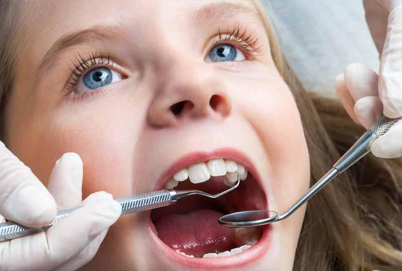 Nhổ răng sữa tại nha khoa đảm bảo an toàn sức khỏe răng miệng của trẻ