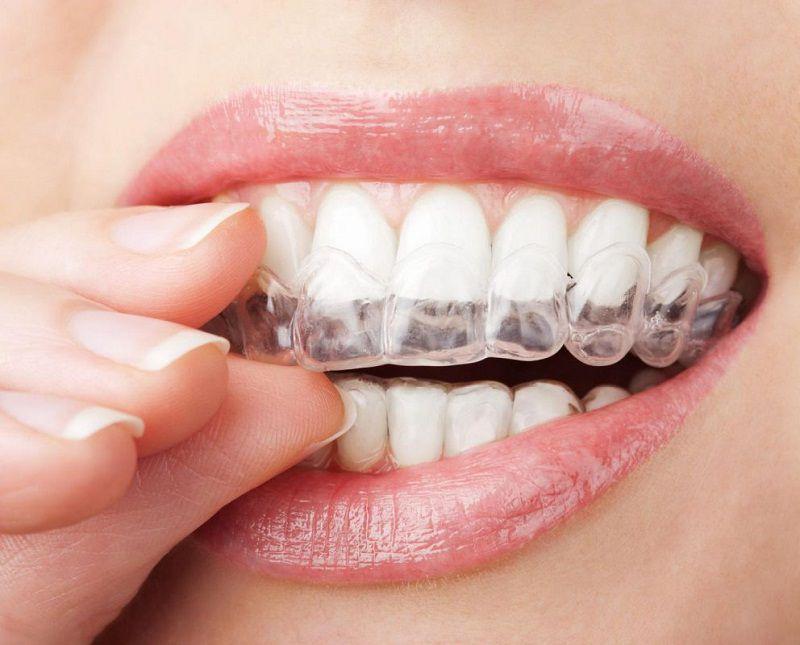 Niềng invisalign là phương pháp sử dụng khay niềng trong suốt để niềng răng