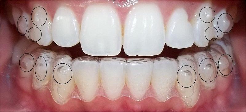 Quy trình niềng invisalign trải qua tất cả là 5 bước điều trị