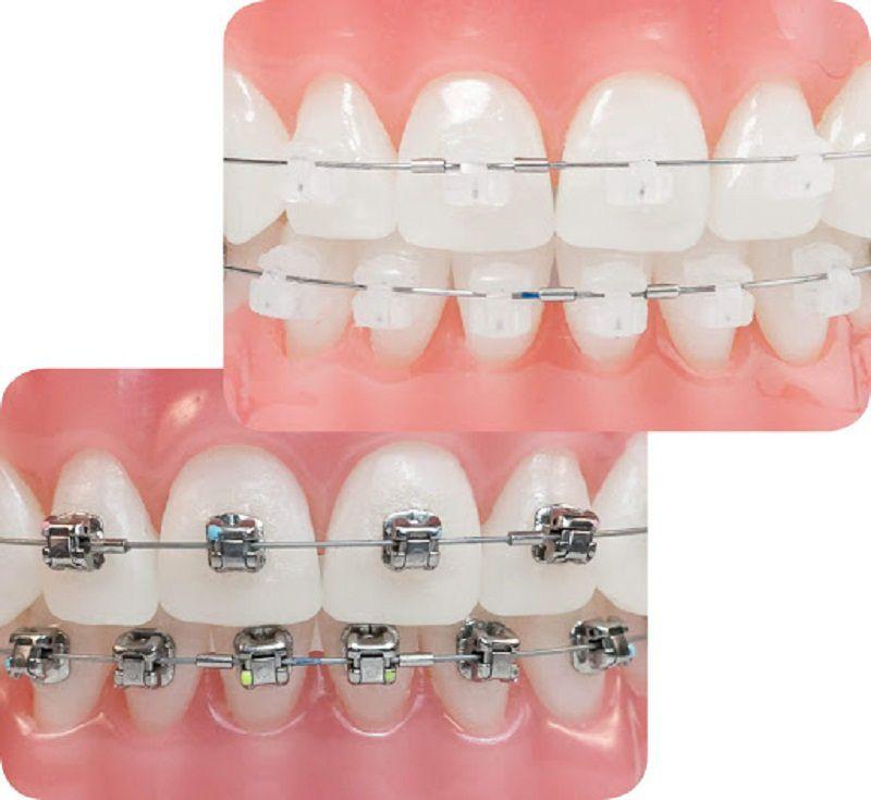 Niềng pha lê là phương pháp niềng răng phổ biến, có cấu trúc tương tự với phương pháp niềng răng mắc cài