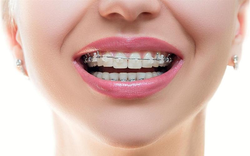 Niềng pha lê có nhiều điểm giống với niềng răng sứ