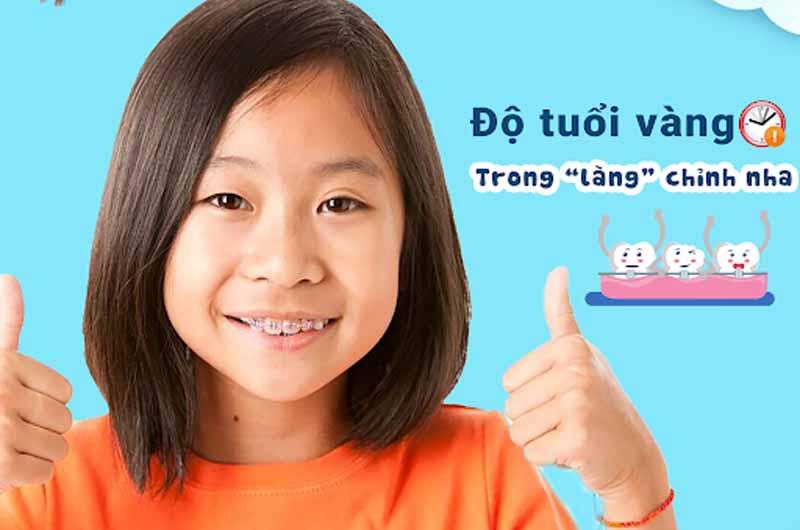 Khi nào nên niềng răng cho trẻ là tốt nhất