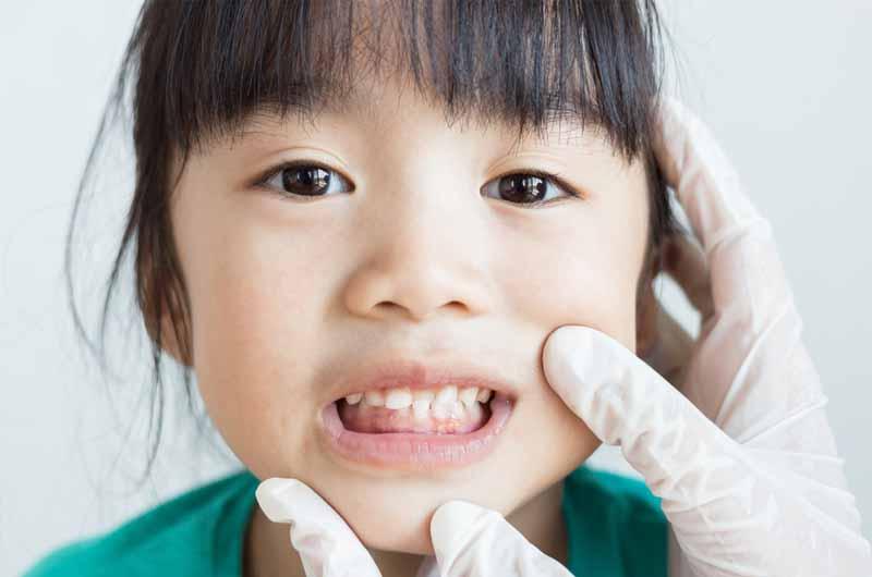 Niềng răng cho trẻ là gì?