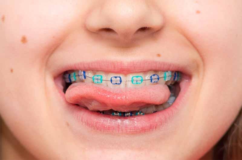 Niềng răng bằng mắc cài cố định mang lại hiệu quả chỉnh nha cao cho trẻ