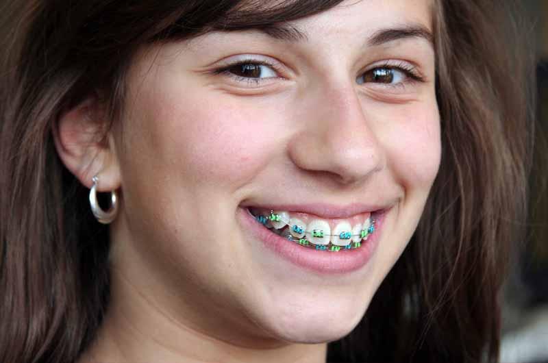 Niềng răng là biện pháp chỉnh nha răng hô hiệu quả