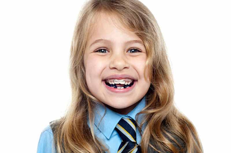 Độ tuổi cũng là yếu tố ảnh hưởng nhiều đến kết quả niềng răng hô