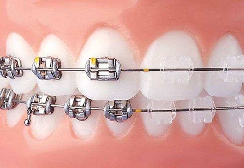 Hình ảnh niềng răng hô hàm mắc cài kim loại