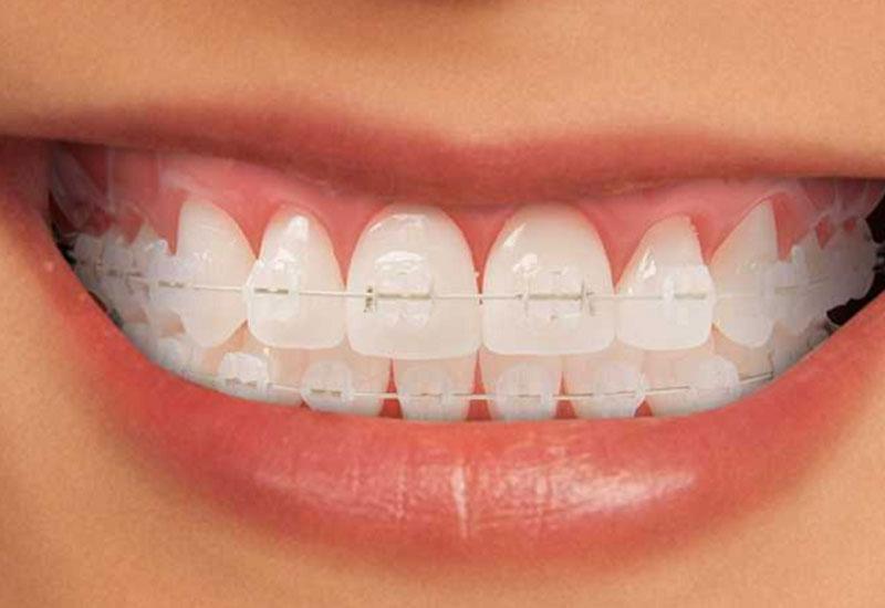 Niềng răng hô hàm mắc cài sứ
