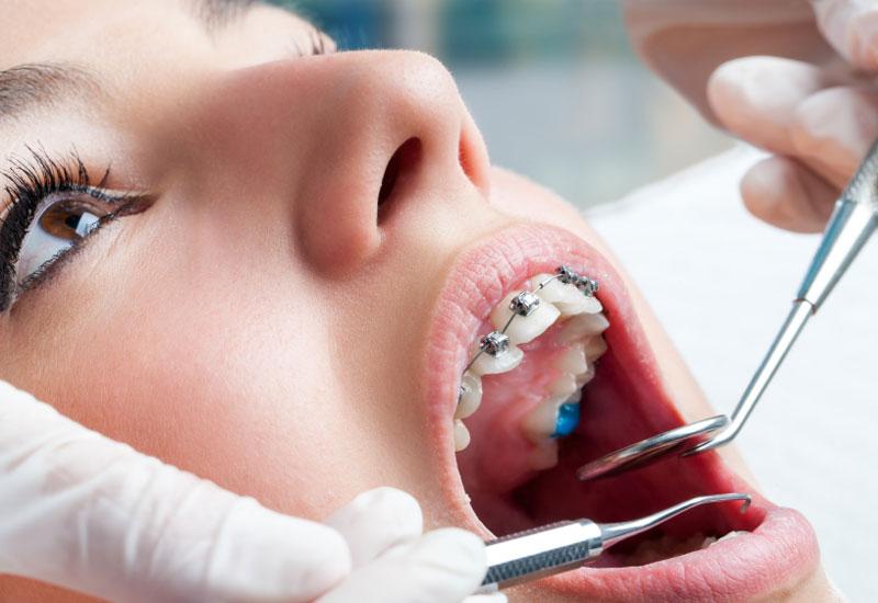 Trong quá trình niềng răng việc thăm khám đúng lịch hẹn với bác sĩ là rất quan trọng