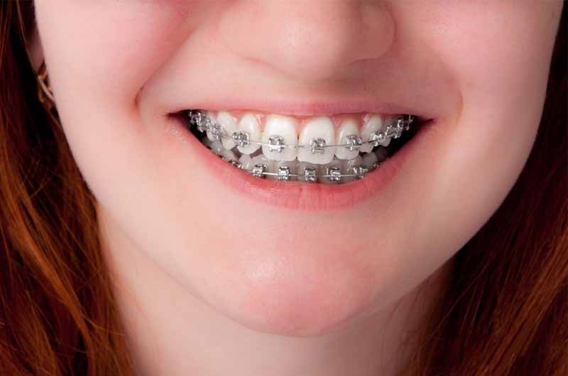 Phương pháp niềng răng hô bàng mắc cài kim loại thông thường