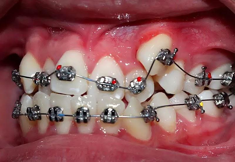 Tùy vào tình trạng răng và khả năng tài chính các bác sĩ sẽ tư vấn cho bạn phương pháp niềng răng phù hợp.