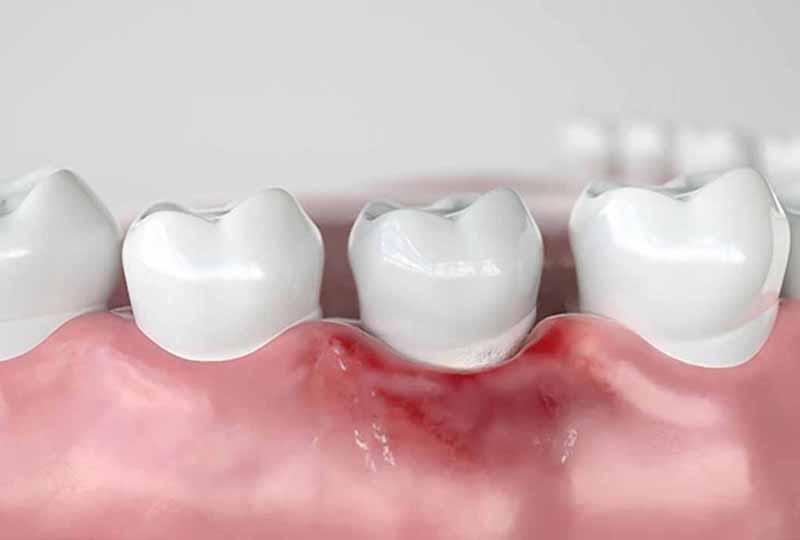 Khớp cắn sâu kéo dài có thể gây ra các bệnh lý về răng miệng
