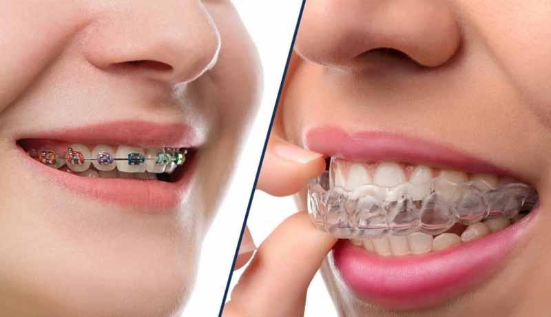 Niềng răng khớp cắn sâu bằng mắc cài kim loại