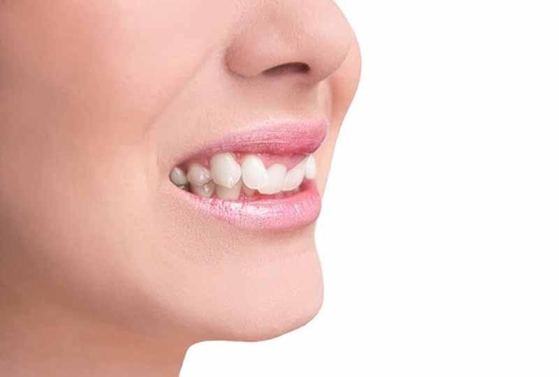 Việc nhổ răng khi niềng sẽ phụ thuộc vào hàm răng thực tế của người bệnh