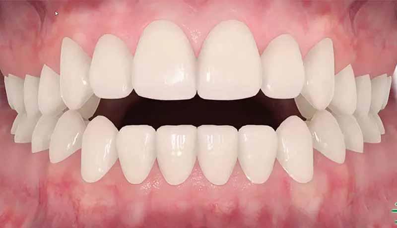 Thời gian niềng răng phụ thuộc vào nhiều yếu tố