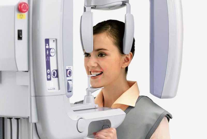 Chụp X quang toàn hàm để bác sĩ có cơ sở dữ liệu chính xác