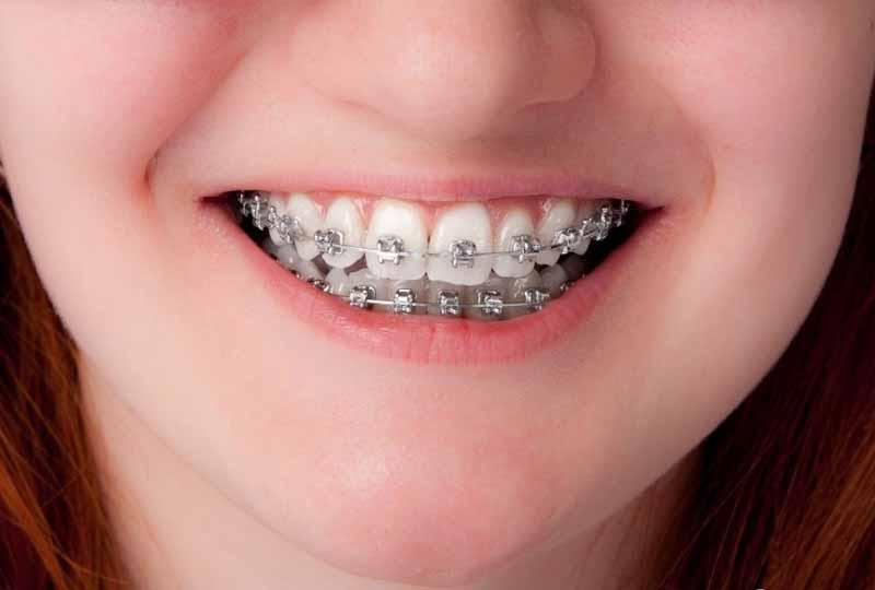Niềng răng lệch khớp cắn bằng mắc cài kim loại