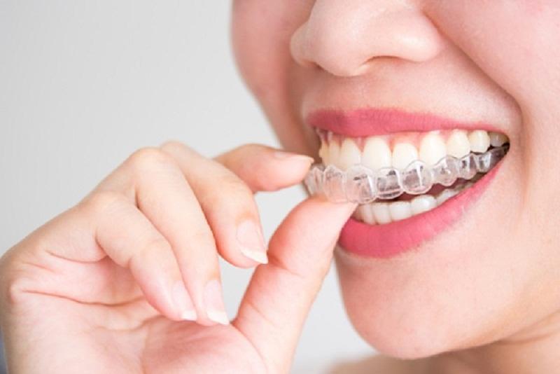 giá thành của niềng răng trong suốt leetray sẽ dao động trong khoảng từ 60 - 120 triệu/ca