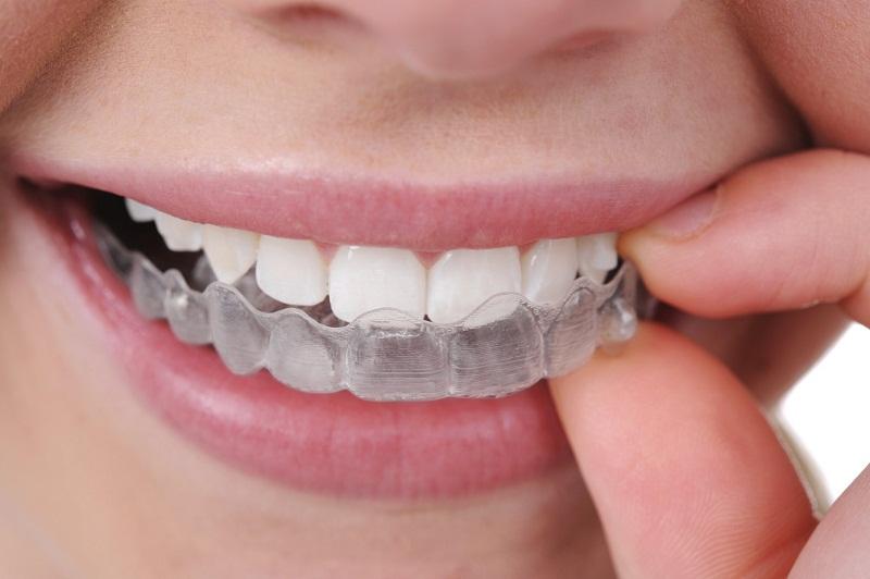 Niềng răng leetray là phương pháp chỉnh nha mới giúp căn chỉnh lại vị trí của những chiếc răng mọc lệch trên cung hàm