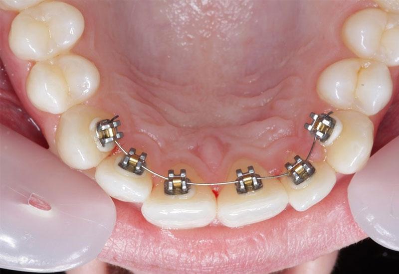 Niềng răng mặt trong là phương pháp chỉnh nha gắn mắc cài ở bên trong hàm răng