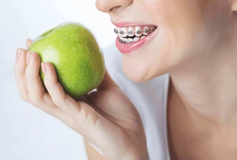 Niềng răng ăn uống như thế nào là phù hợp