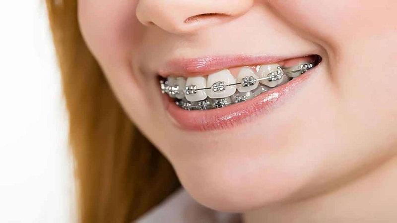 Niềng răng bằng loại mắc cài thường