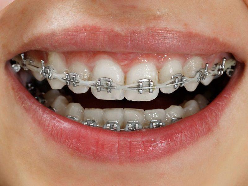 Niềng răng sắt là phương pháp niềng răng truyền thông