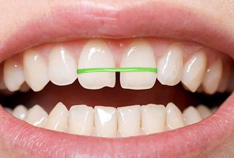 Niềng răng bằng dây thun tự chế có thể gây nguy hiểm đến hàm răng