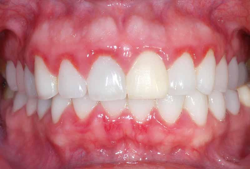 Việc niềng răng cho trẻ tại nhà có thể gây ra các bệnh lý về răng miệng