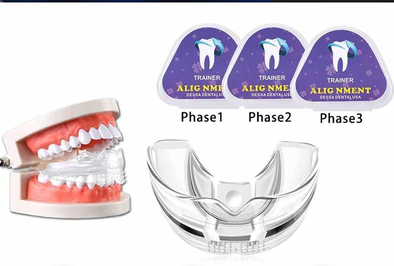 Niềng răng tại nhà bằng hàm silicon chỉ nên được thực hiện khi có chỉ định của bác sĩ