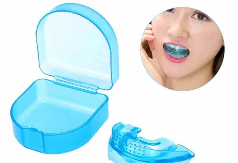 Niềng răng trainer là gì? Khi nào cần niềng răng trainer