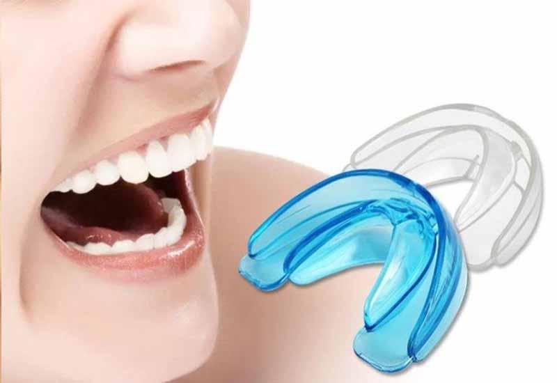 Người lớn niềng răng trainer có hiệu quả không?