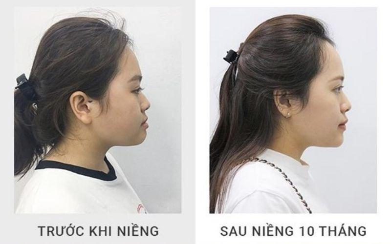 Khuôn mặt trước và sau khi niềng răng hô có sự thay đổi đáng kể
