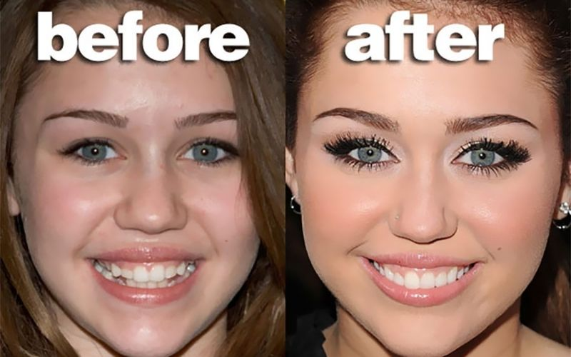 Niềng răng before after