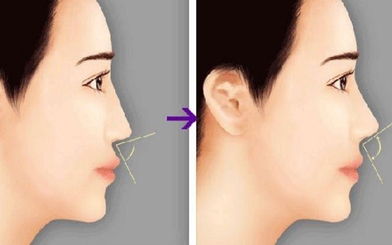 Niềng răng hô trước và sau dễ dàng nhận thấy sự khác biệt về góc mũi