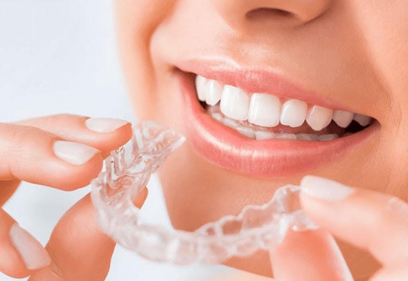 Niềng răng vô hình là biện pháp chỉnh nha hiện đại sử dụng khay niềng trong suốt