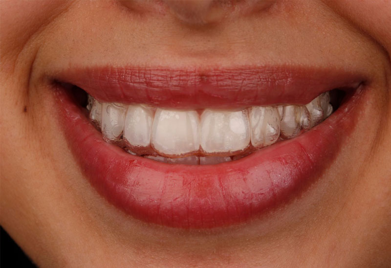 Niềng răng invisalign rất khó phát hiện