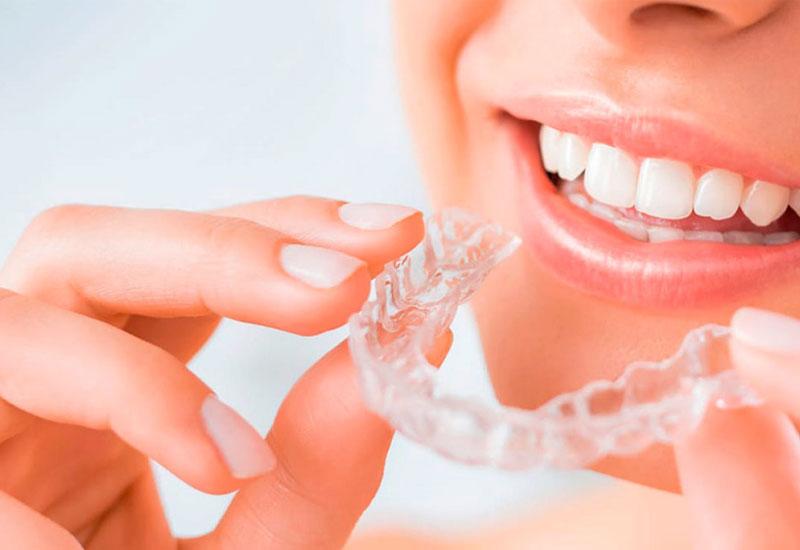 Niềng răng invisalign là biện pháp chỉnh nha hiện đại đang ngày càng trở nên phổ biến