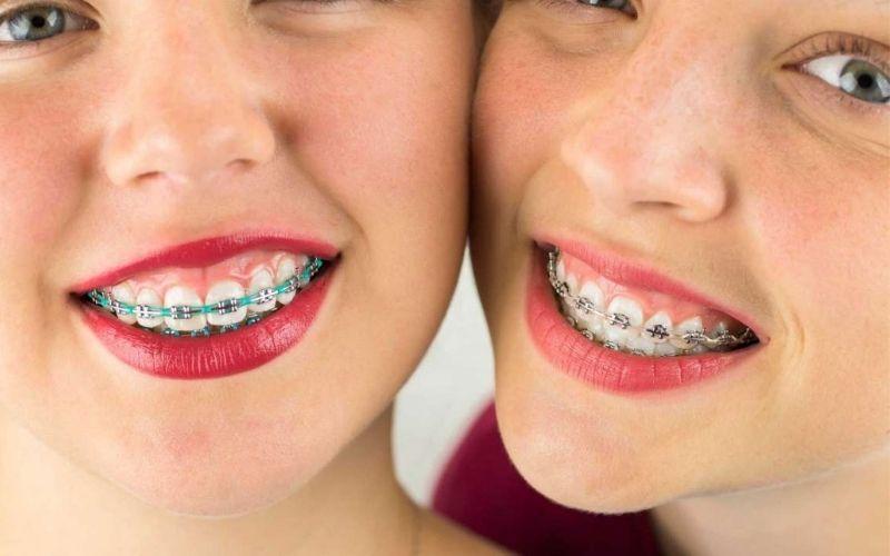Niềng răng xong vẫn xấu có thể là do các chỉ định của bác sĩ không phù hợp với tình trạng răng của bạn